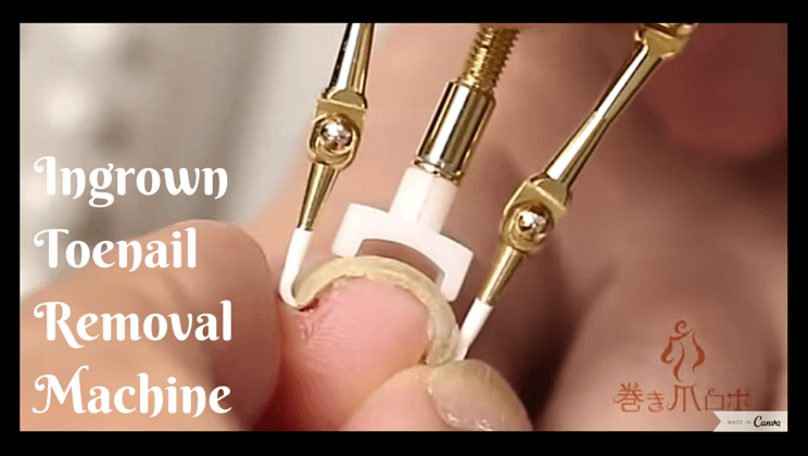 Ingrown toenail removal machine is the stuff of nightmares [video ...